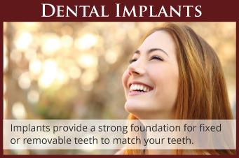 Dental Implants Wilsonville, OR