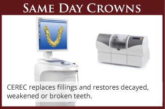 Same Day Crowns - CEREC Wilsonville
