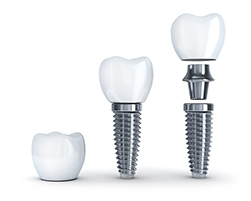 dental implants 493788440 width of 250 pixels