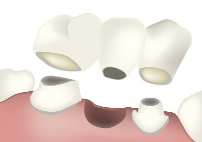 Diagram of a dental bridge from Boones Landing Dental Center