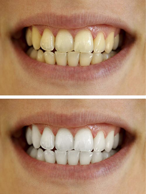 A patients teeth before and after a teeth whitening treatment.