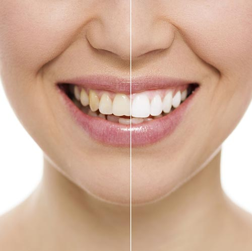 Why Do Some Medicines Cause Staining on Your Teeth?
